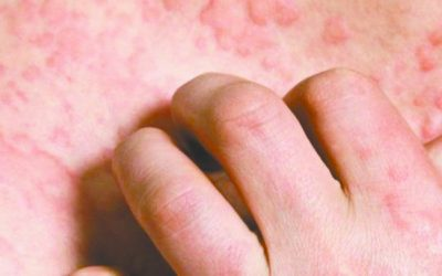 Much To Do About Eczema