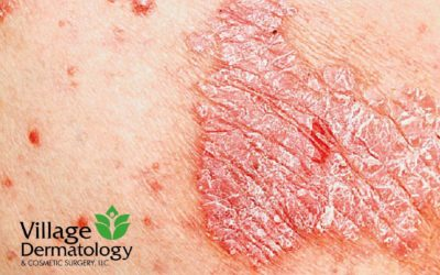 August is the Psoriasis Awareness Month.