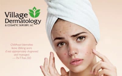Acne: Causes and Treatment Options