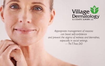 Tips to Better Manage Adult Acne (Rosacea)